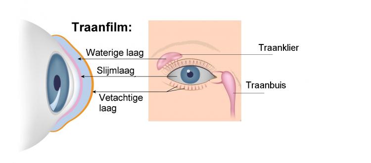 Aanvullend onderzoek bij aanmeten of controleren van contactlenzen