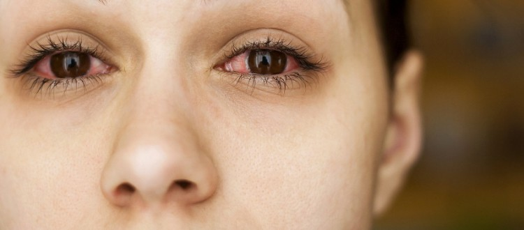 irritatie oog