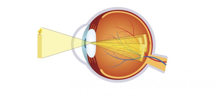 Cilinderafwijking (astigmatisme)